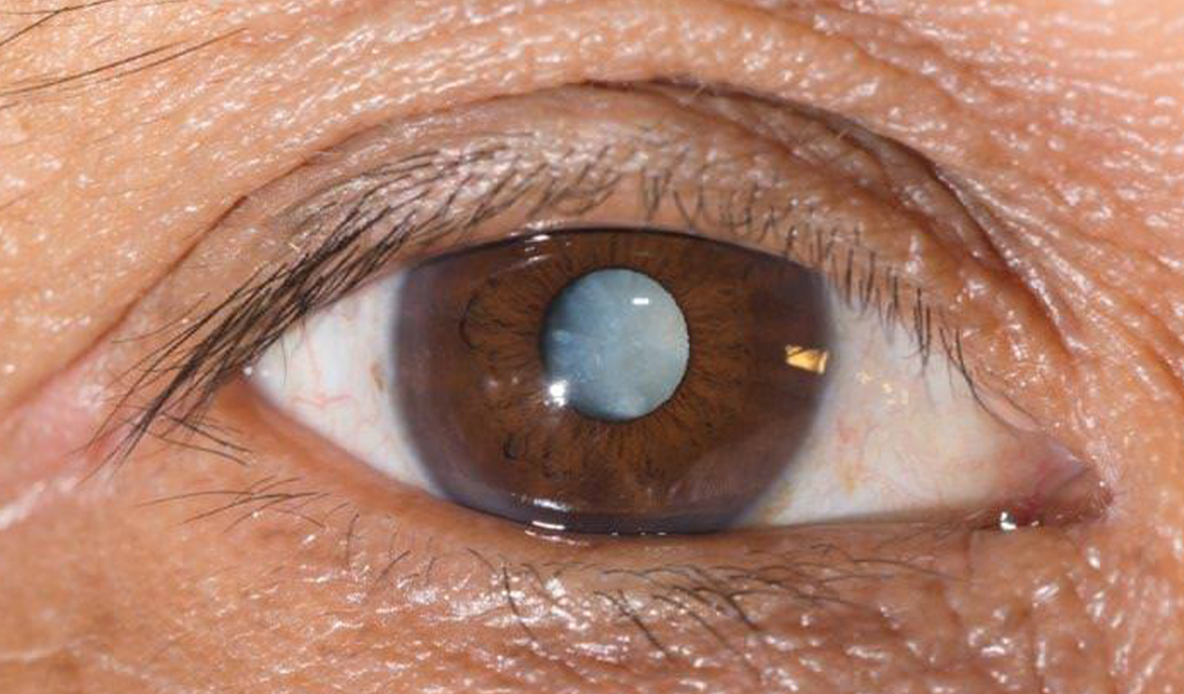 eye with cataract
