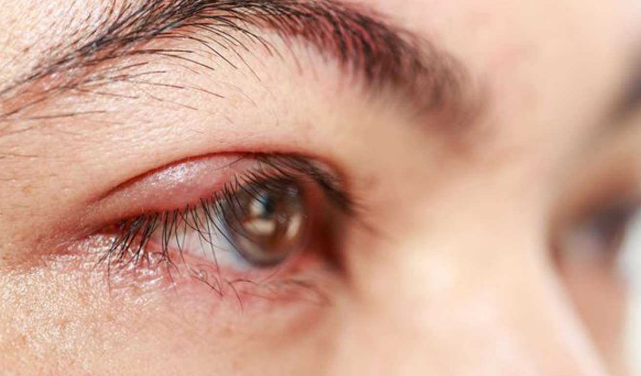 Eye with chalazion