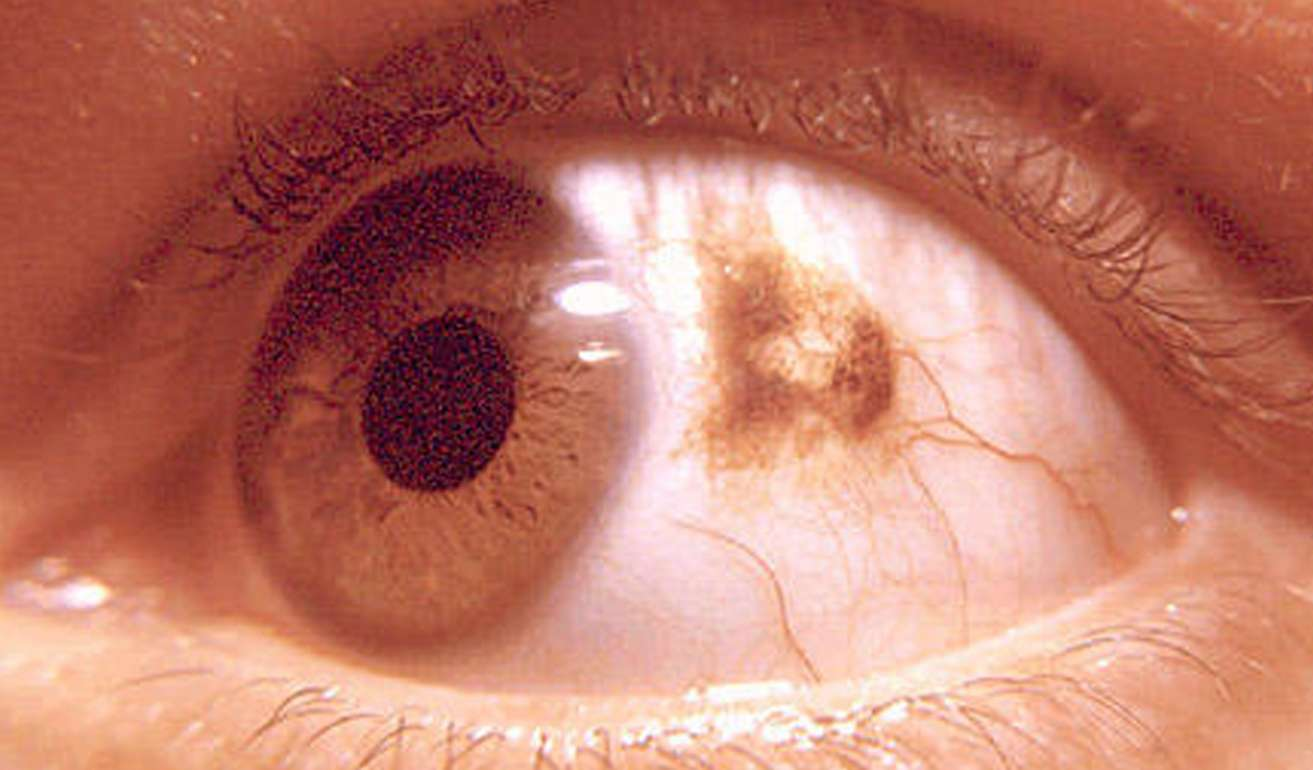 Eye with choriodialnevus