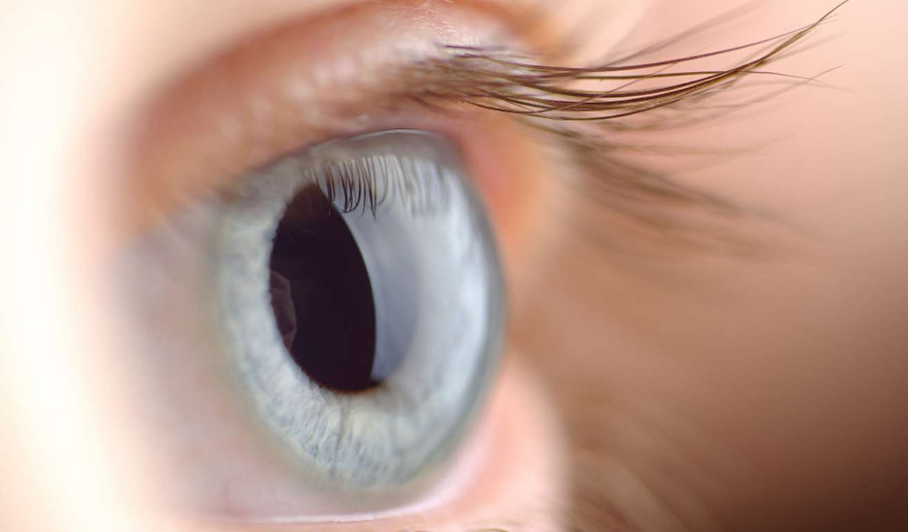 Eye with implantable contact lens
