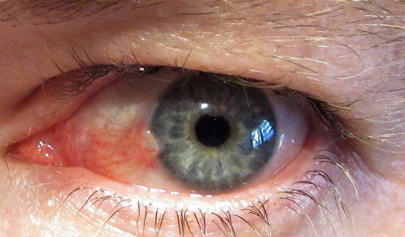 Eye with pingegula